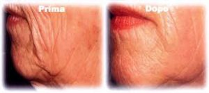 foto carbossi viso prima e dopo